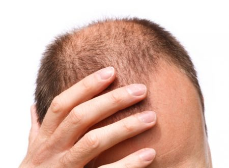 How To Treat for Alopecia Areata – Help Guide