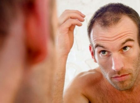 The Most Popular and Effective Men Hair Loss Treatment