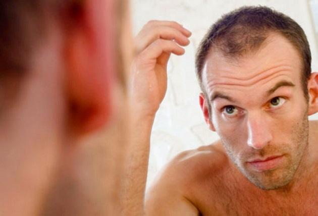 receding hair treatment