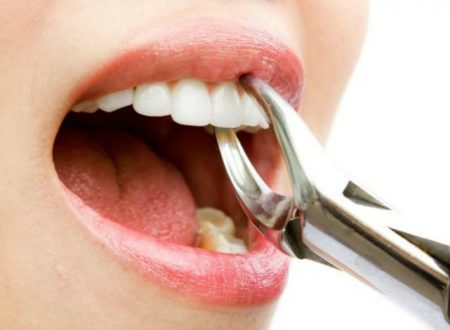What To Consider When Removing A Wisdom Tooth