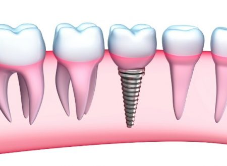 Important Facts on Teeth Implants