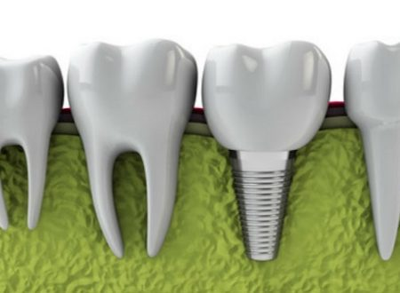 Basics of a Dental Implant Procedure